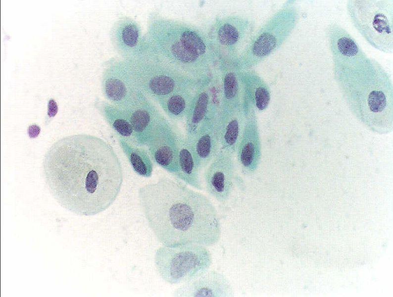 Obraz z wymazu z szyjki macicy