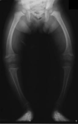 Zdjęcie RTG kolan szpotawych