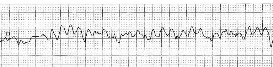 Zapis EKG z migotaniem komór