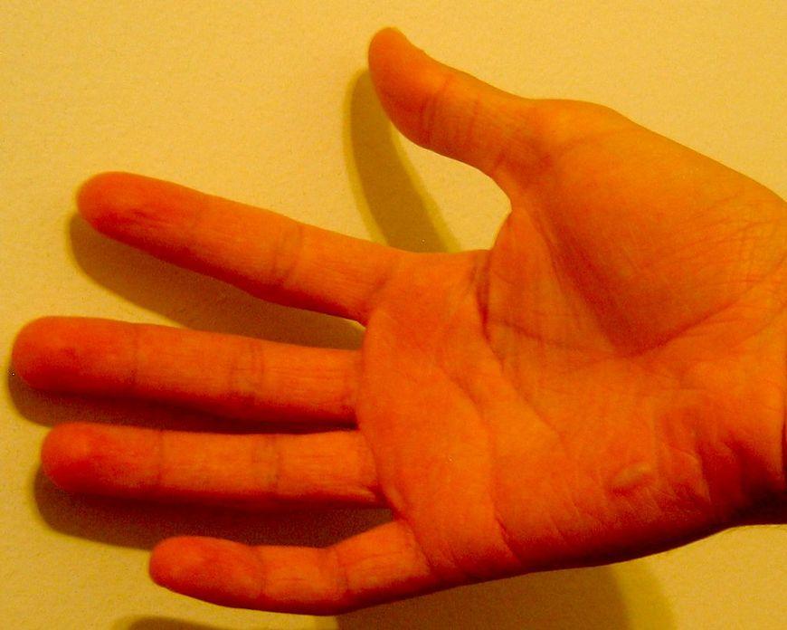 Oparzona patelnią dłoń