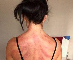 Czerwone pręgi na plecach. Tak wygląda ciało przepracowanej fryzjerki