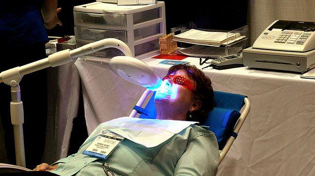 Kobieta w czasie zabiegu wybielania zębów