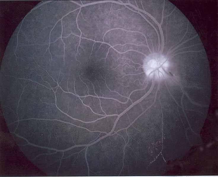 Obraz siatkówki oka