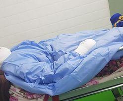 Wylał na żonę wrzący olej, kiedy kobieta spała. Ofiara ataku ledwo przeżyła
