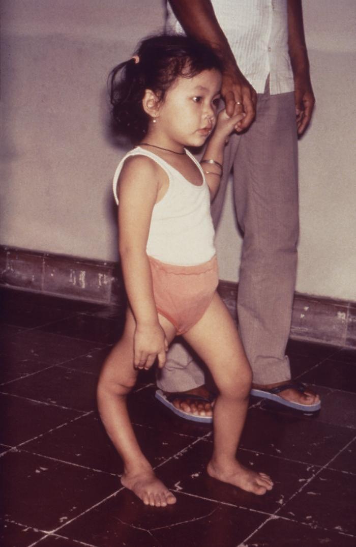 Dziewczynka z polio