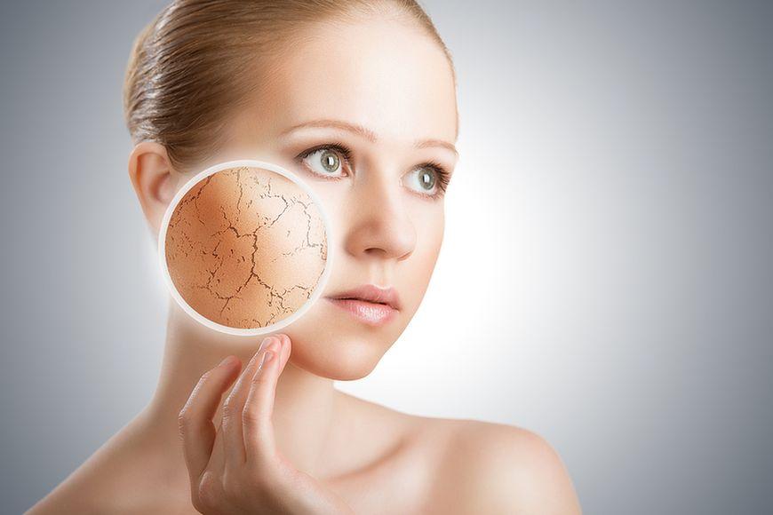 Charakterystyczne cechy skóry suchej