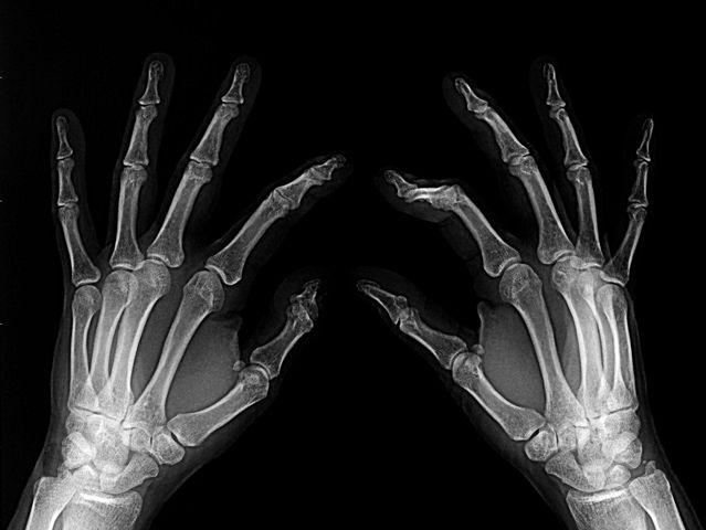 Środki na osteoporozę