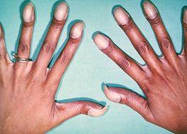 Pałeczkowate palce chorego na tetralogię Fallota