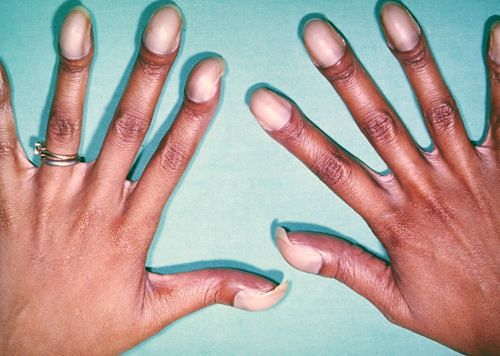 Zmienione chorobowo dłonie