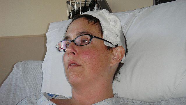 Kobieta po urazie głowy