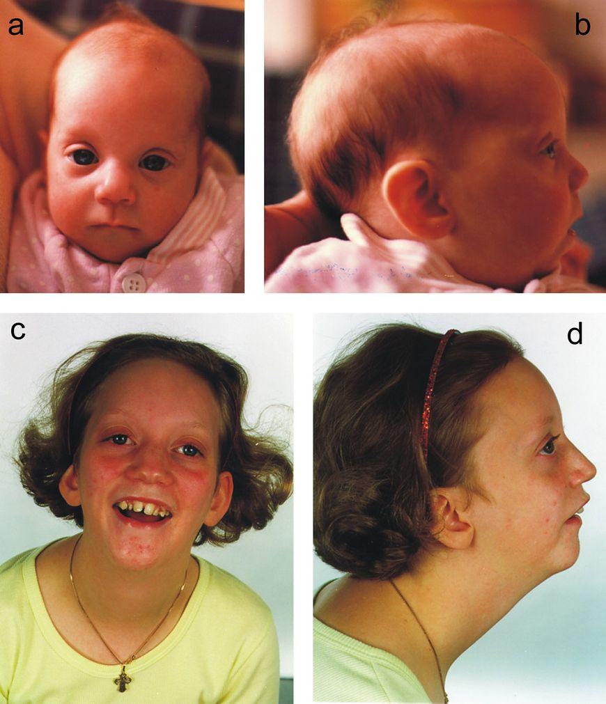 Zdjęcia dziewczynki z upośledzeniem umysłowym
