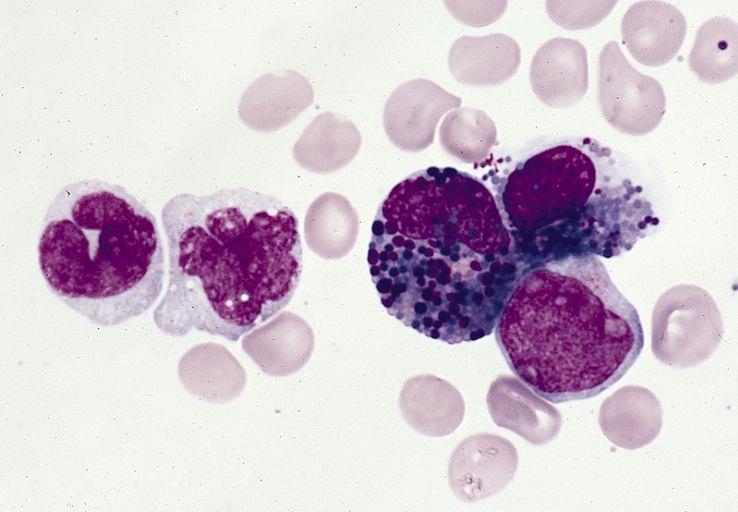 Zdjęcie mikroskopowe eozynofili