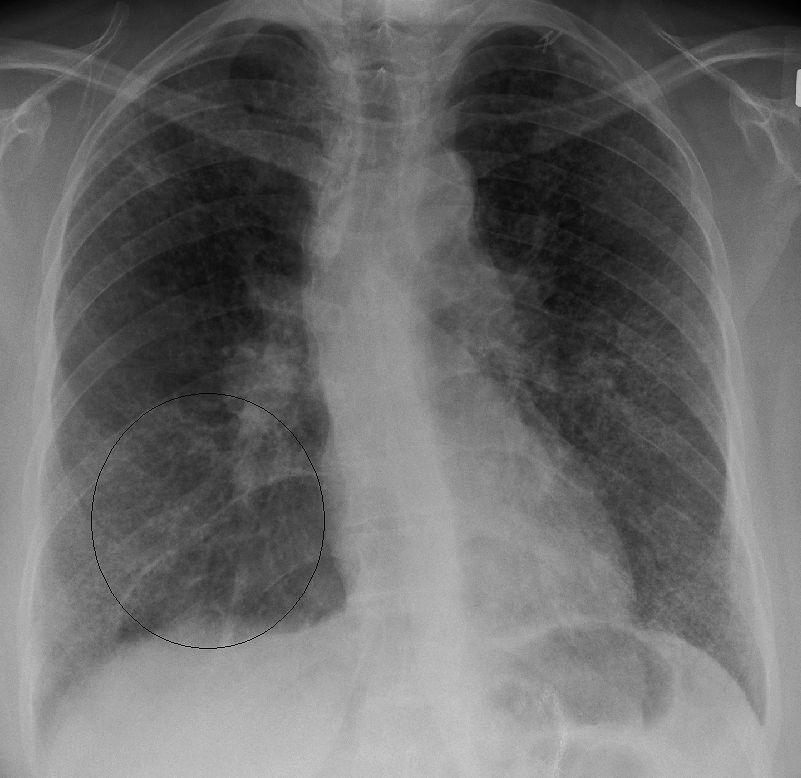 Zdjęcie RTG płuc z sarkoidozą