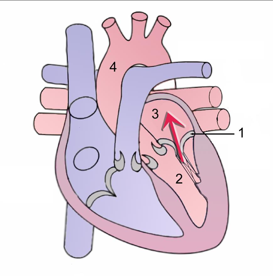 Rysunek serca z niedomykalnością zastawki