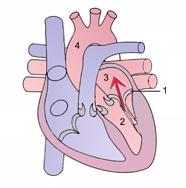 Serce z niedomykalnością zastawki