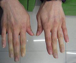Zimne dłonie? Uważaj, twój organizm cię ostrzega