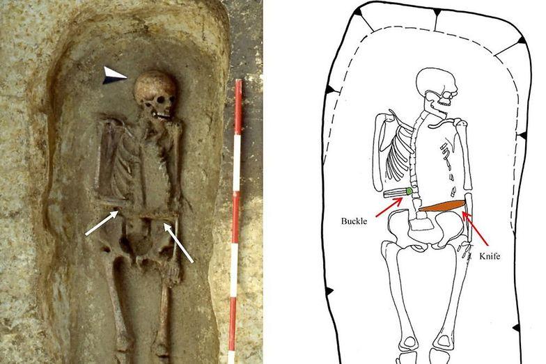 Archeolodzy trafili na nietypowy szkielet. Nazywają go pierwszym cyborgiem świata