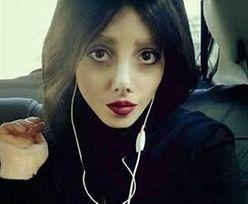 """""""Zombie Angelina"""" pokazała zdjęcia sprzed operacji"""