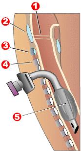 Rysunek ilustrujący zabieg tracheotomii