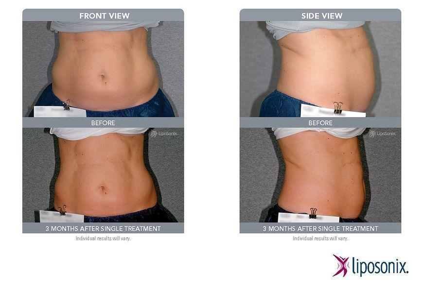 Różnica w wyglądzie brzucha po zabiegu Liposonix