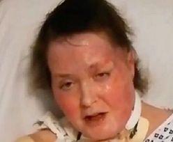 Do jej domu wrzucono bomby. Zmarła po miesiącach walki o zdrowie