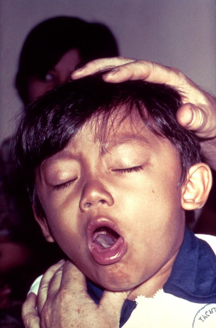 Dziecko w czasie napadu kaszlu wywołanego przez krztusiec