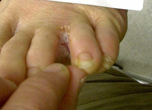 Stopa chorego na grzybicę stóp