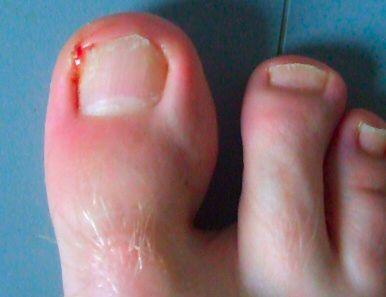 Zdjęcie zanokcicy stopy