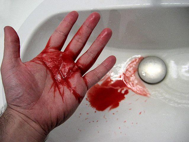 Kontakt z krwią