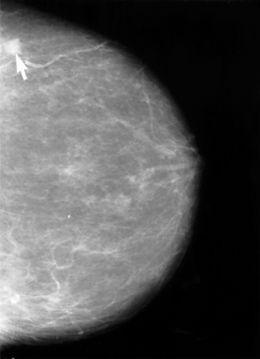 Obraz mammograficzny piersi