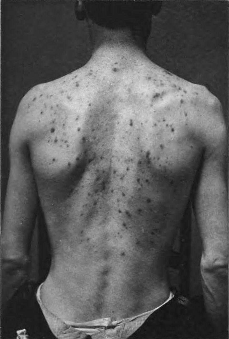 Plecy pokryte trądzikiem młodzieńczym