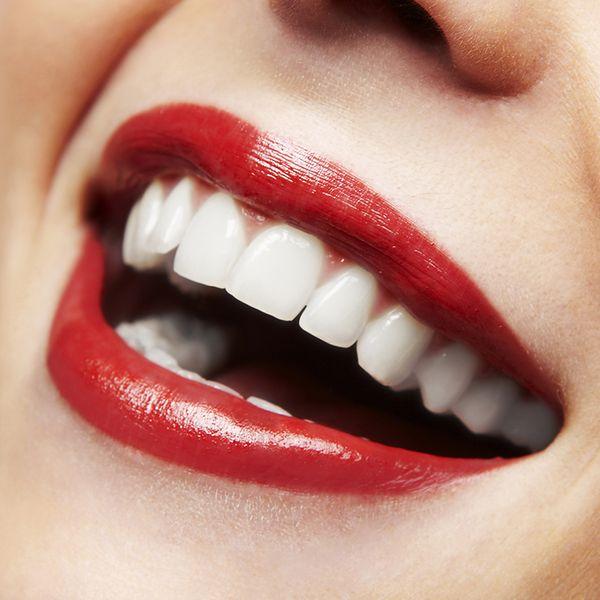 Co zrobić, aby mieć uśmiech jak gwiazda?