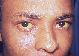 Żółtaczka (zmiany skórne i twardówkowe)