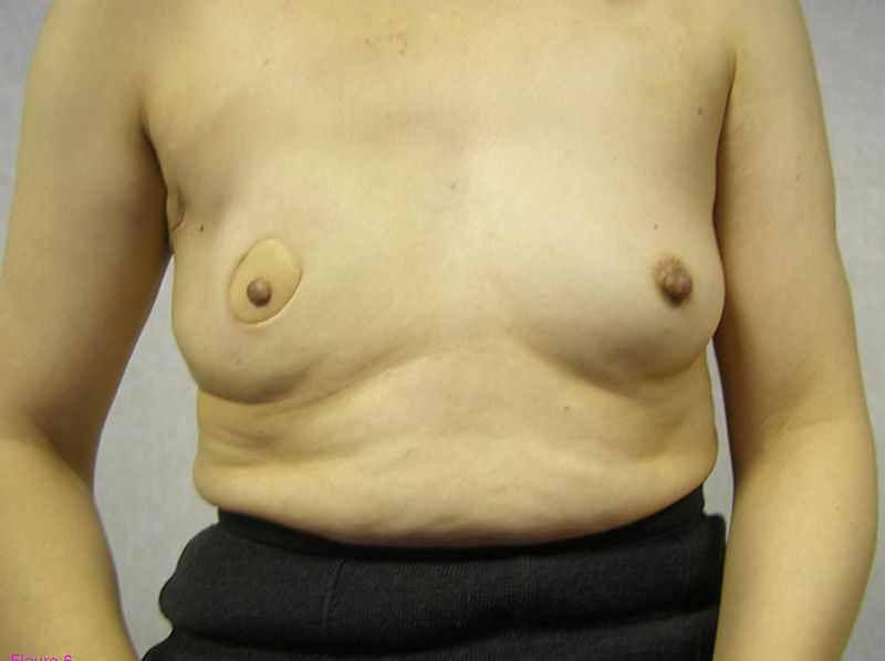 Piersi po rekonstrukcji bez implantów