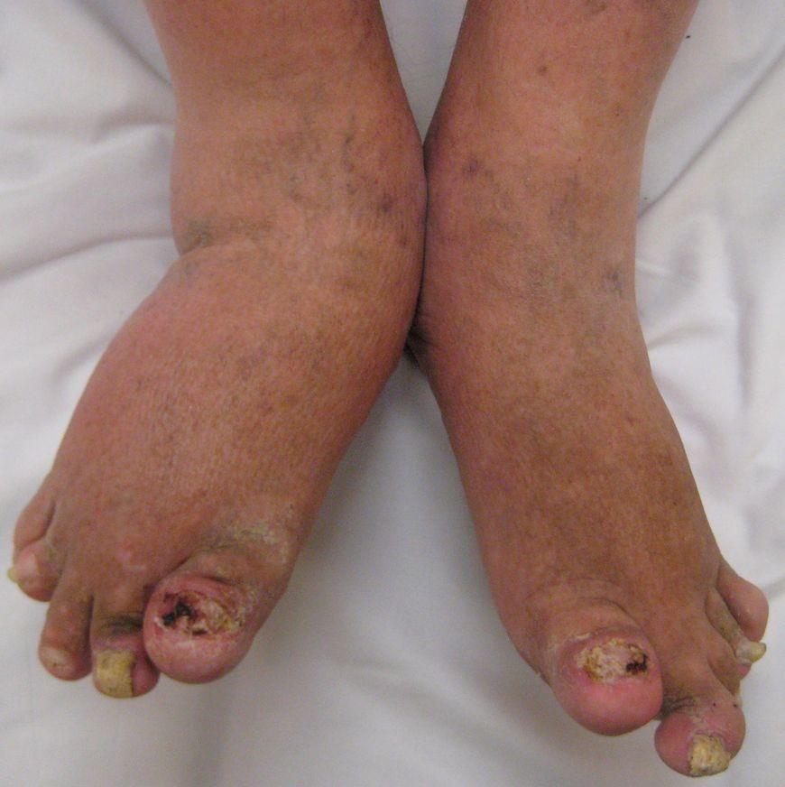 Zmienione chorobowo stopy osoby z łuszczycą stawów
