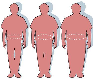 Przykłady sylwetek zdrowych i otyłych pacjentów - porównanie sylwetek