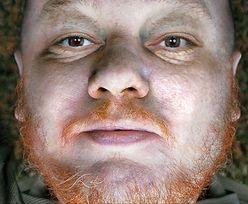 Topielec z jeziora Długiego w Olsztynie. Kim jest tajemniczy mężczyzna z raną postrzałową głowy?