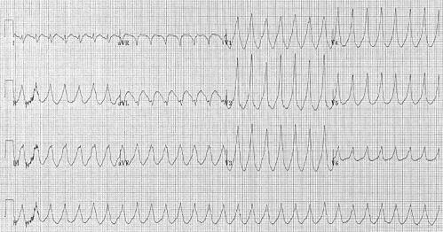 Zdjęcie zapisu EKG