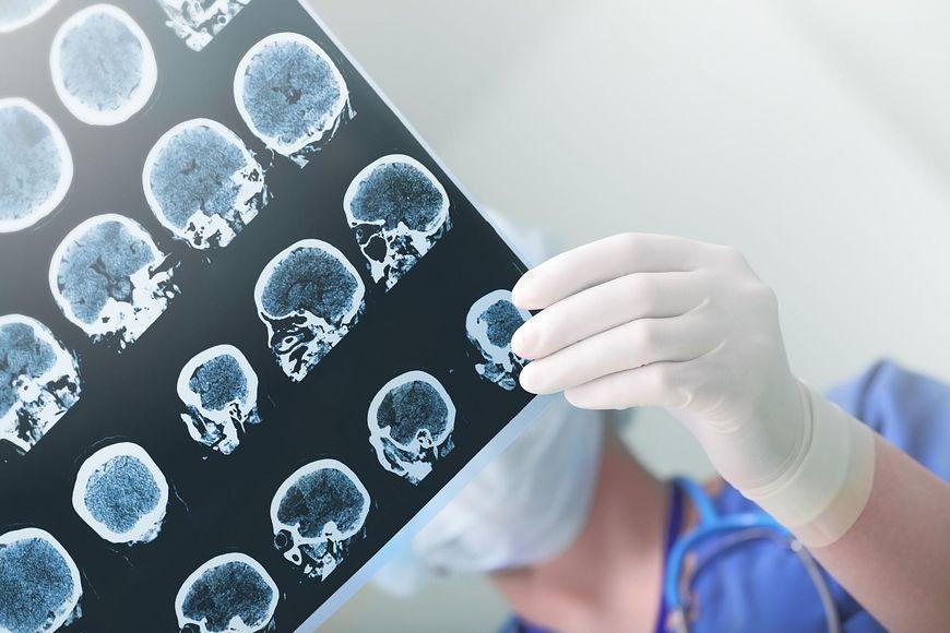 Ryzyko udaru móżgu można zmniejszyć poprzez zdrowy tryb życia