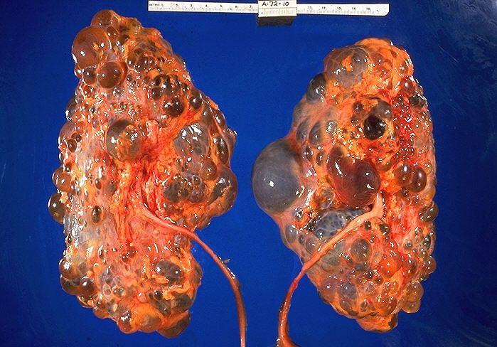 Zdjęcie zmienionych chorobowo nerek