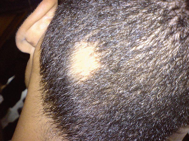 Hormon odpowiedzialny za łysienie androgenowe mężczyzn