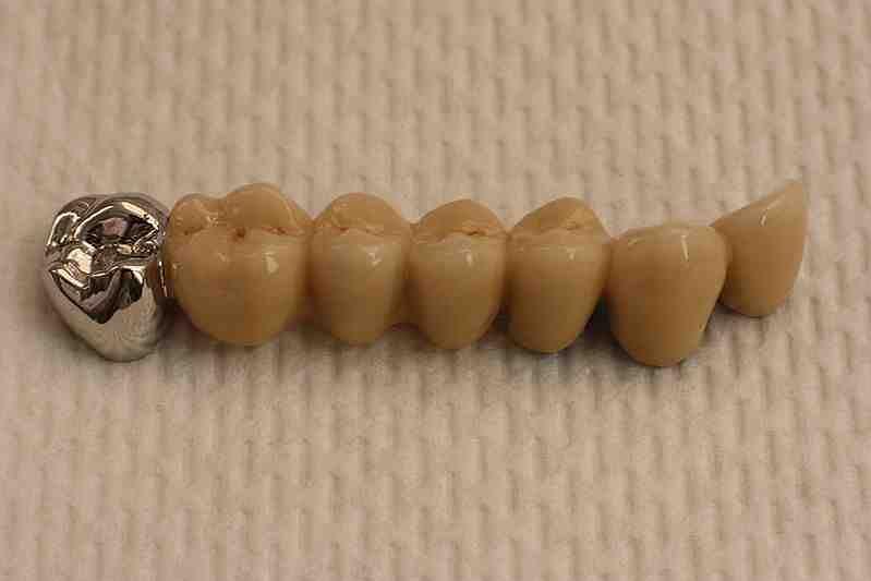 Wygląd mostu dentystycznego