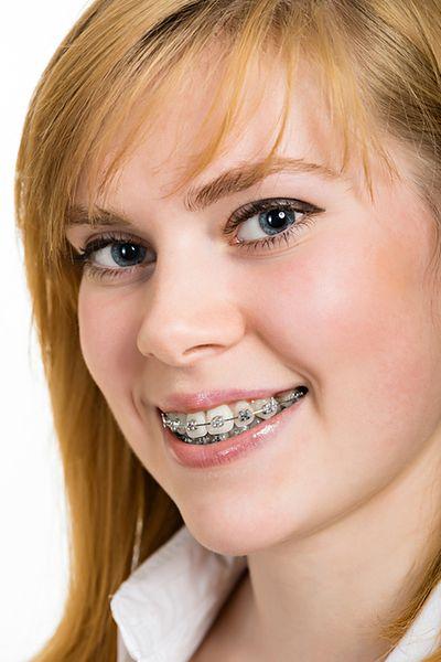 Aparat ortodontyczny na zęby