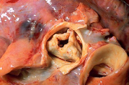 Zmieniona chorobowo zastawka aortalna