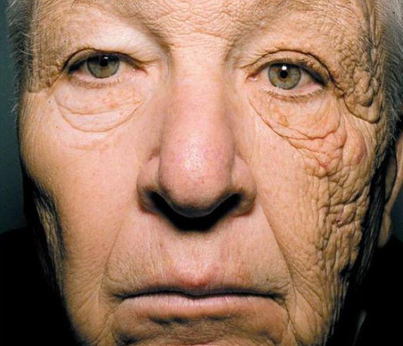 To jedno zdjęcie pokazuje, jak bardzo szkodliwe są promienie słoneczne