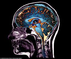 """""""Kreatywna"""" i """"logiczna"""" półkula mózgu to mit. Sprawa jest dużo bardziej złożona"""