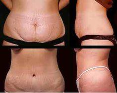 Efekty plastyki brzucha