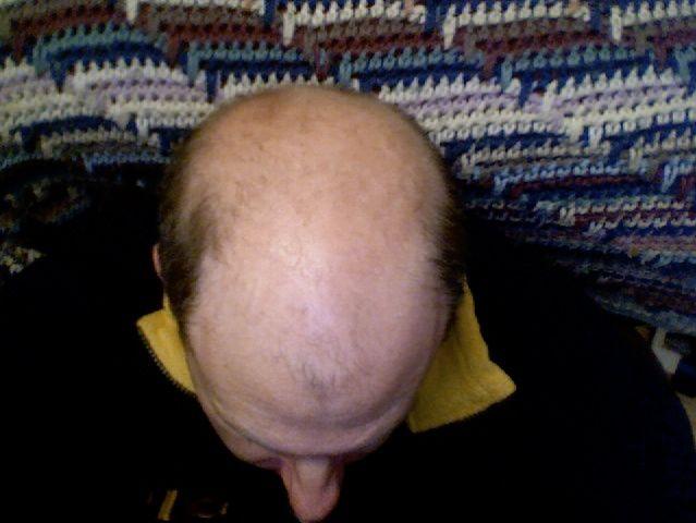 Pozbawiona włosów głowa mężczyzny