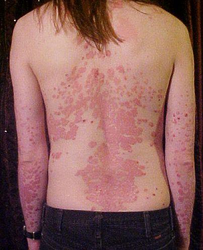 Skóra kobiety chorej na łuszczycę